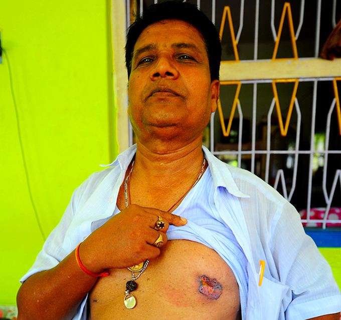 """Sunil Bagh works at the cooperative bank in Ghetugachi village of Nadia district. The 52-year-old shows a skin lesion. Doctors have told him it is a result of arsenic poisoning and may turn cancerous. """"I have lost eight relatives to arsenic poisoning,"""" Bagh says. """"My father, my uncles, aunts… The doctors say my lungs are already affected. They are recommending surgery."""" At Bagh's office, colleagues can quickly list around 40 relatives, friends and acquaintances who have died due to arsenic poisoning in the last ten years or so."""