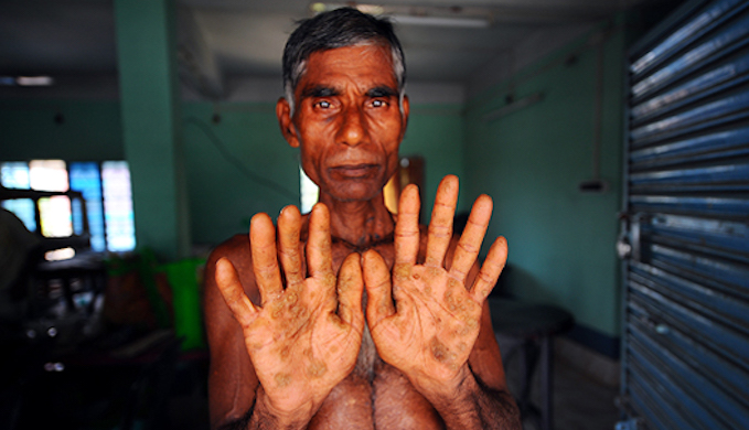 Photo feature: climate change worsens arsenic poisoning